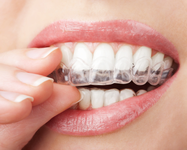 Invisalign fort lauderdale dentist