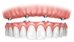 Illustration of the All-on-Four upper implant-supported dentures.