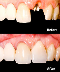 Before and after image of a missing tooth replaced by a dental implant.