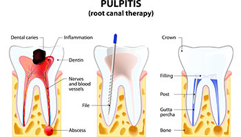 Diagram illustration of root canal treatment.