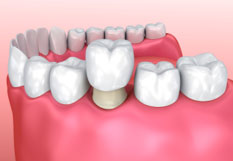 Diagram of porcelain crowns being cemented over tooth.,