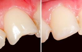 Image of before and after chairside veneers and dental bonding.