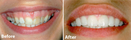 Before and after of cosmetic gum recontouring.