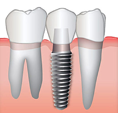 Diagram of dental implants being used as a tooth replacement option.