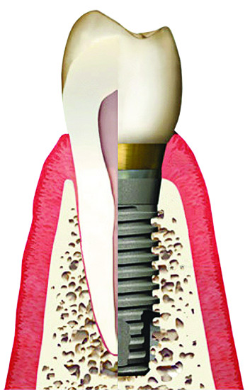 Diagram of a single dental implant placed in a cutaway of the jawbone.
