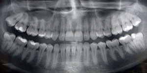 An image of a panoramic x-ray