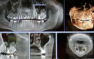X-Ray images of teeth.
