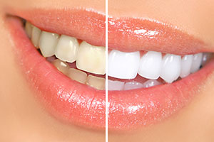 Image of teeth whitening before and after professional grade teeth whitening.