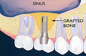 Sinus Lifts and Bone Grafting